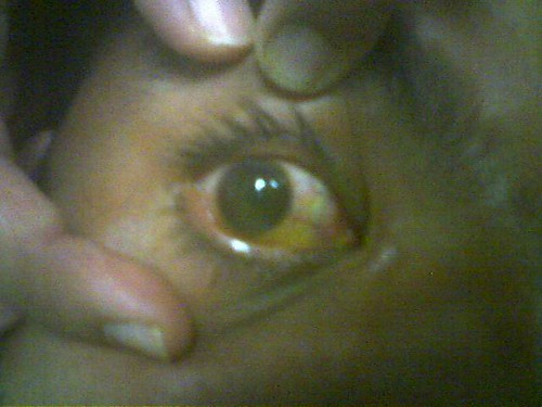 Super Glue in Eye
