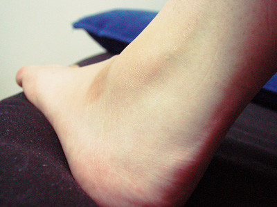 my hurt ankle