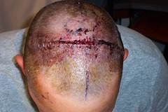 Josh's Brain Surgery by maddox, on Flickr