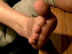 Amputated toes (weaponeer) Tags: toes foot amputation amputated burnedoff scar amp stump cutofftoes amputee stumpy missingtoes cooltoes scars finger fingerstump stumps cutofffingers choppedofffingers amputations messedup nub nubs