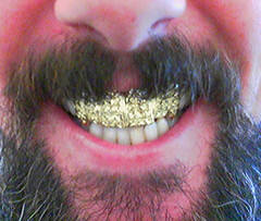 how to get ride of calcaire from teeth