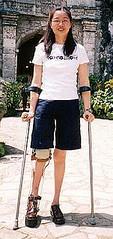 Celia 3 (aloyharg) Tags: leg celia wong crutches brace paralysis polio kafo caliper infantile calliper poliomyelitis builtupshoe