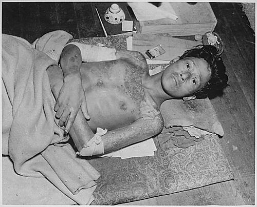 Sobreviviente de Nagasaki