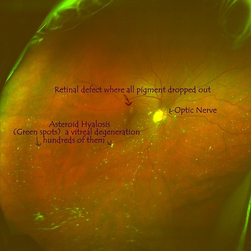 what causes asteroid hyalosis - photo #12