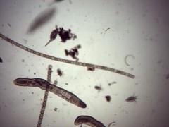 20061106 plankton 100 8 (OHS Env Sci) Tags: lake merritt plankton