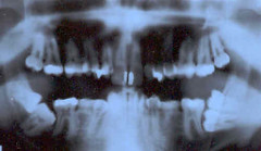 panoramic x-ray of my teeth