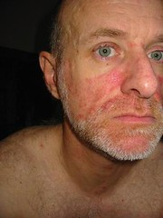 Treatment for facial psoriasis