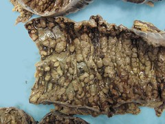 pseudom colitis (manny.canada) Tags: pathology colon diarrhea difficile colitis pseudomembranous clostridium colectomy