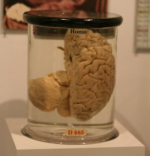 Got Brain?