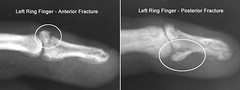 2 fractures, 1 detached tendon (Lynn Family-Chicago) Tags: broken pain finger xray fracture
