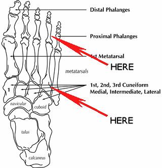 Broken ankle diagram