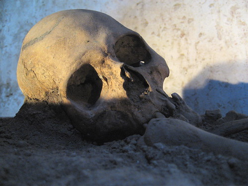Guatemala: 16th c. monk's skull