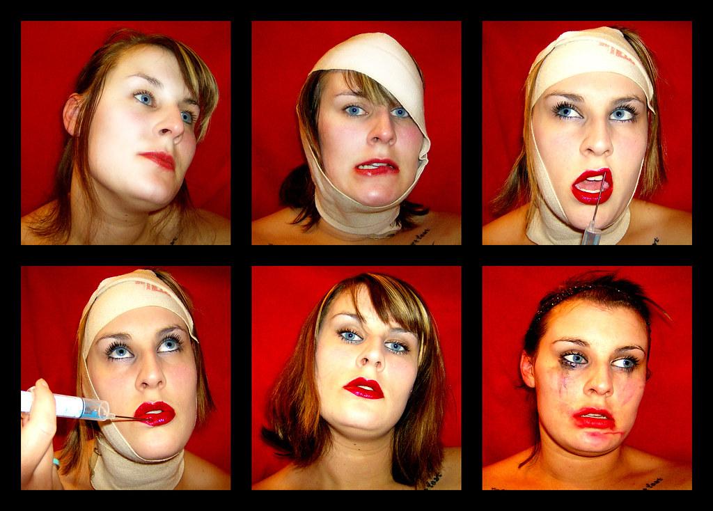 Stetik Surgery Expo 2007
