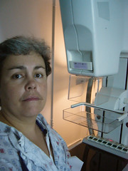day57 mammogram