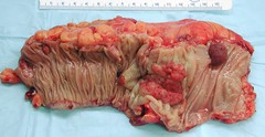Colon cancer (manny.canada) Tags: cancer pathology colon polyp carcinoma tumour adenoma colectomy