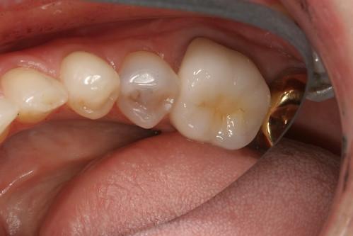 how to avoid cavity in teeth