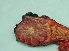 microcystic pancreas (manny.canada) Tags: pathology tumour pancreas benign adenoma serous microcystic