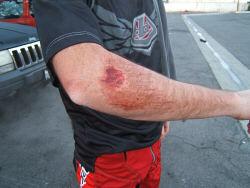 Eric's arm