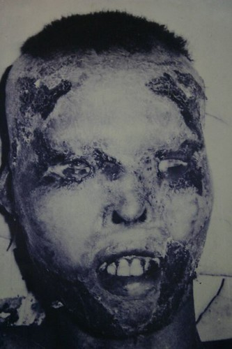 A Vietnamese civilian badly burnt by napalm
