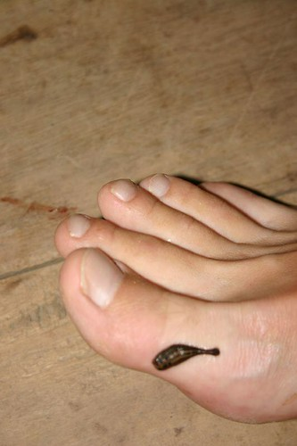Disgusting leech. I tore it off soon after the photo was taken - obviously! Cat Tien N.P