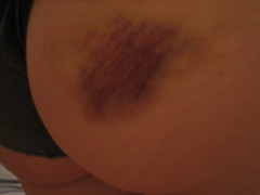 1st bout bruise (poke_of_doom) Tags: bruise