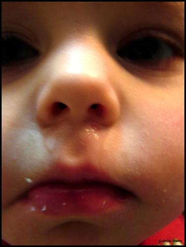 Running nose...