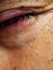 Boys don't cry ? (hazevi) Tags: men eye tears cry puffyeye