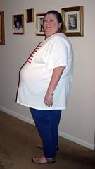 me during lori weightlosssurgery presurgery gastricbypass