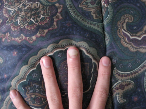 My fungus fingernail