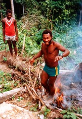 Blistered Feet (Mangiwau) Tags: new man feet fire islands guinea pacific britain south flames fireman png papua hagen seas tpc portmoresby rabaul wau melanesia tolai madang goroka pacifique firewalker lae guinee niugini oceanie baining alotau morobe papouasie papouasienouvelleguinee nouvelleguinee tpcu18 tpcu18l1