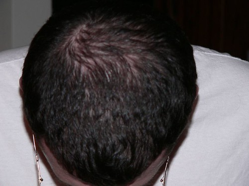 Ramipril and Hair Loss