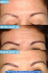 eyebrow transplant + permanent makeup (tattoo) (Dr_Alan_Bauman) Tags: beauty hair makeup before surgery health eyebrow after healing scabs permanent bauman transplant