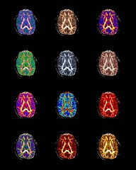 Brain collage (J.T.R.) Tags: brains neuroscience mri dti neuroimaging