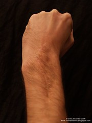 Jeff (Svea Vikander) Tags: arm body wrist scar lifelines