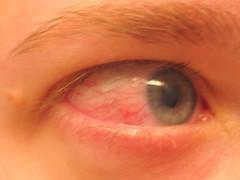 eye owwie 2