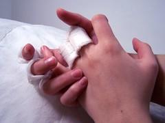 Mãos Eczema