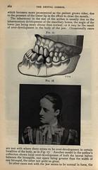 Dental Cosmos: Edward Angle, 1899 (Classificat...