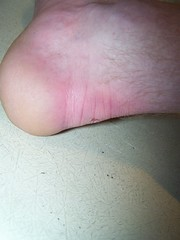 The Results Of Wearing RIGHT-FOOTED Shoes  On ...