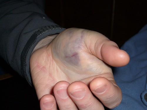Robs Injury