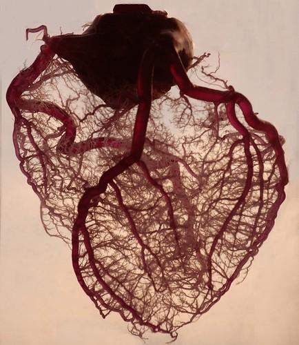Фото Коронарные артерии сердца