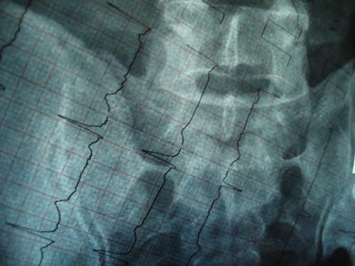 Radiografiado y electrocardiografiado