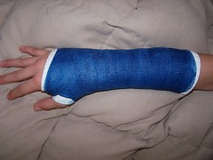 Adam's new cast