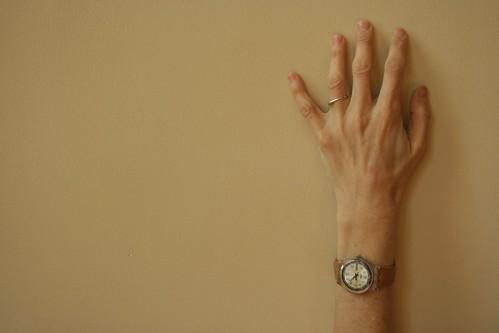 My arm