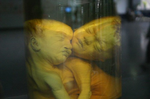 Young victims of the terrible Vietnam/American war. Chemical herbicides spred by the US caused these deformed babies
