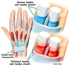 general_tendonitis_dq_anatomy06