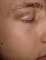 icehockey accident (matz-o-man) Tags: eye finnland auge