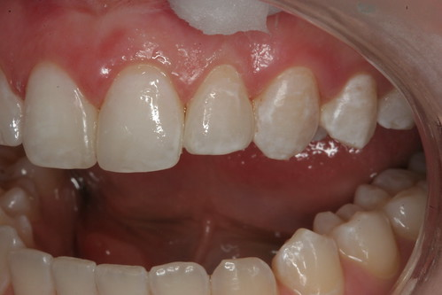 Bonding After Orthodontics