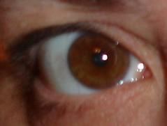 crazy-eye
