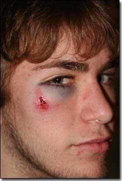 Taylor Rugby Eye
