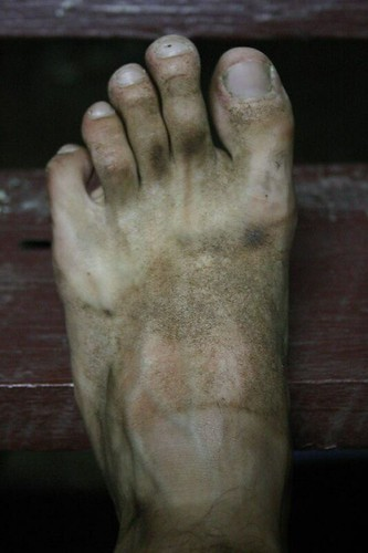 My dirty foot...